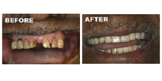 Before and after with dentures