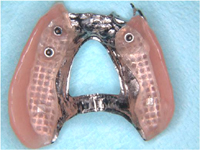 Partial dentures example