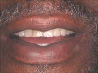 Patient with partial dentures